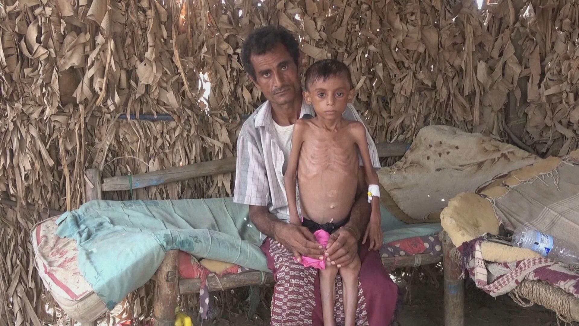 Fome aumenta durante a pandemia, alerta ONU