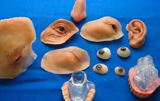 Algumas das próteses feitas pelo Oncocentro