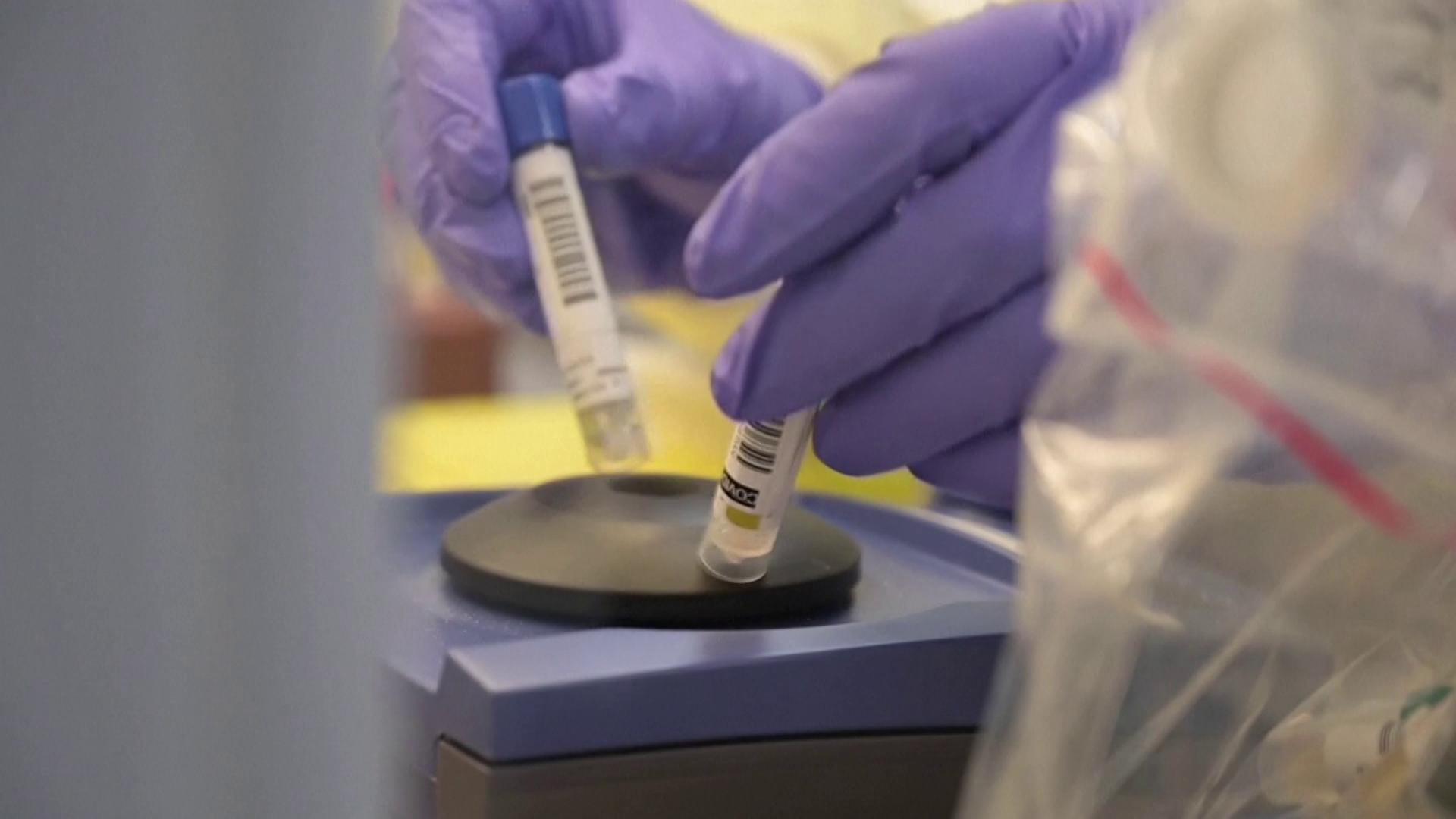 Médicos analisam amostras para detectar coronavírus