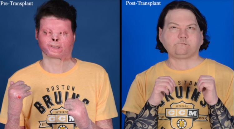 Joe Dimeo antes e depois do transplante