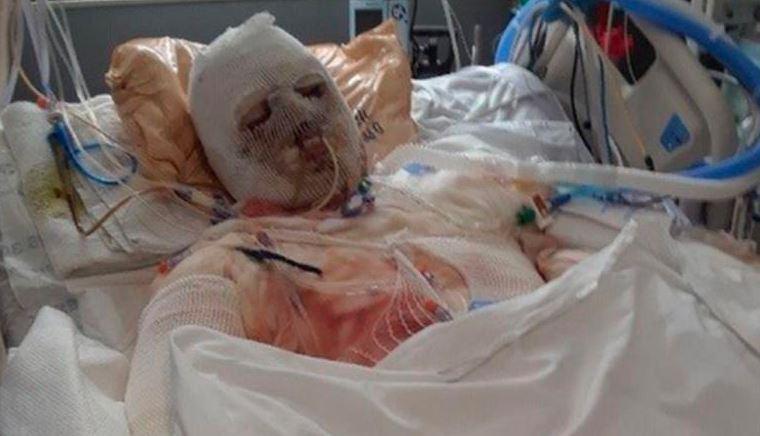 Dimeo se recuperando de queimaduras após seu acidente em 2018
