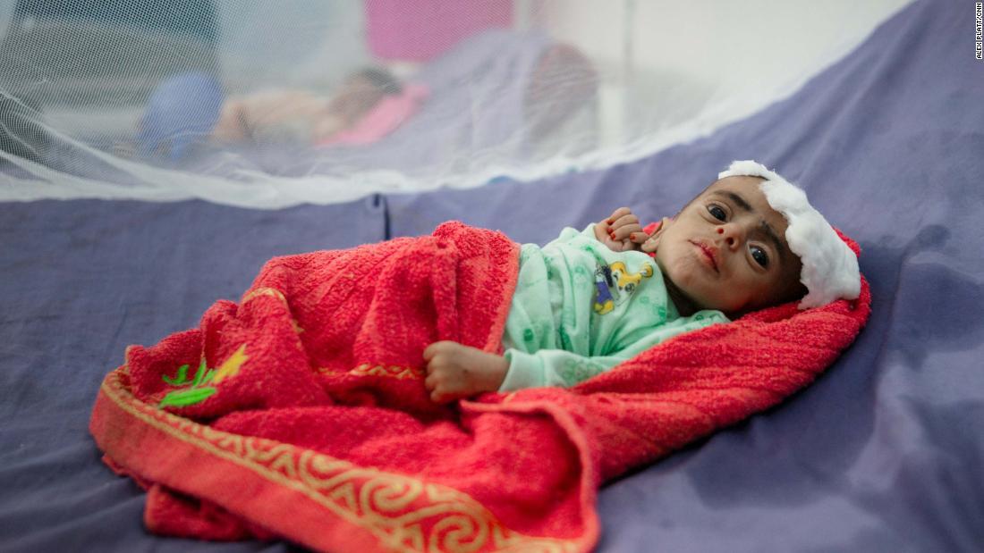 Menino em tratamento contra a fome no Iêmen