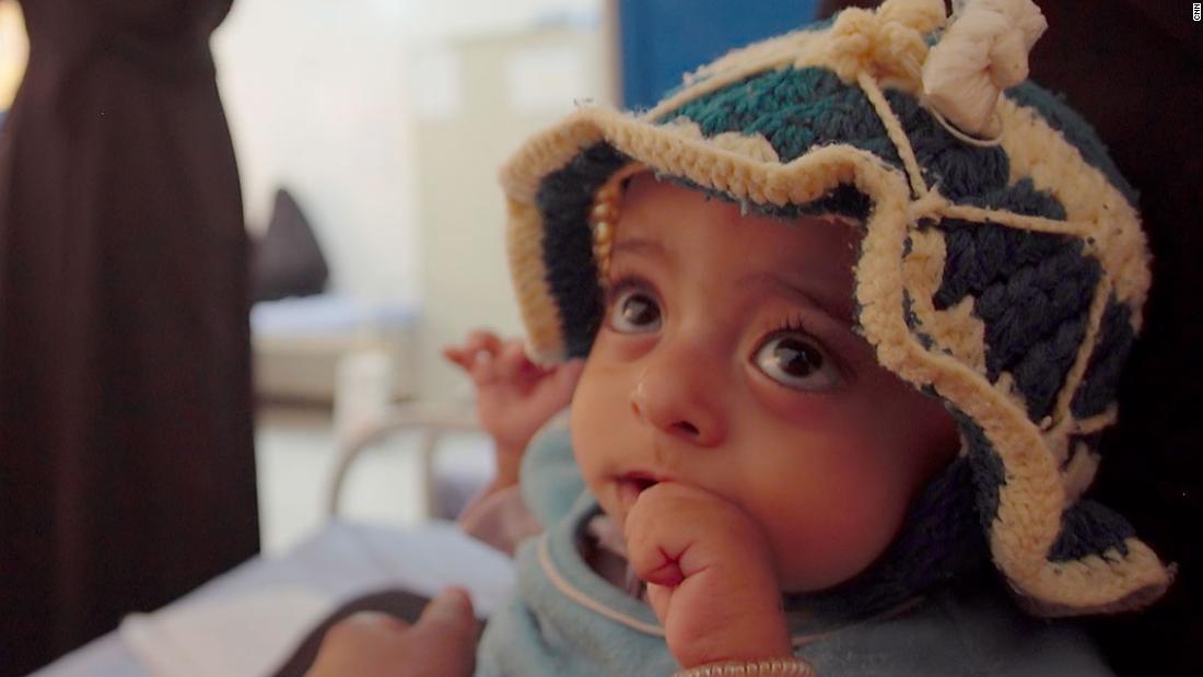 Criança em tratamento contra a desnutrição no Iêmen