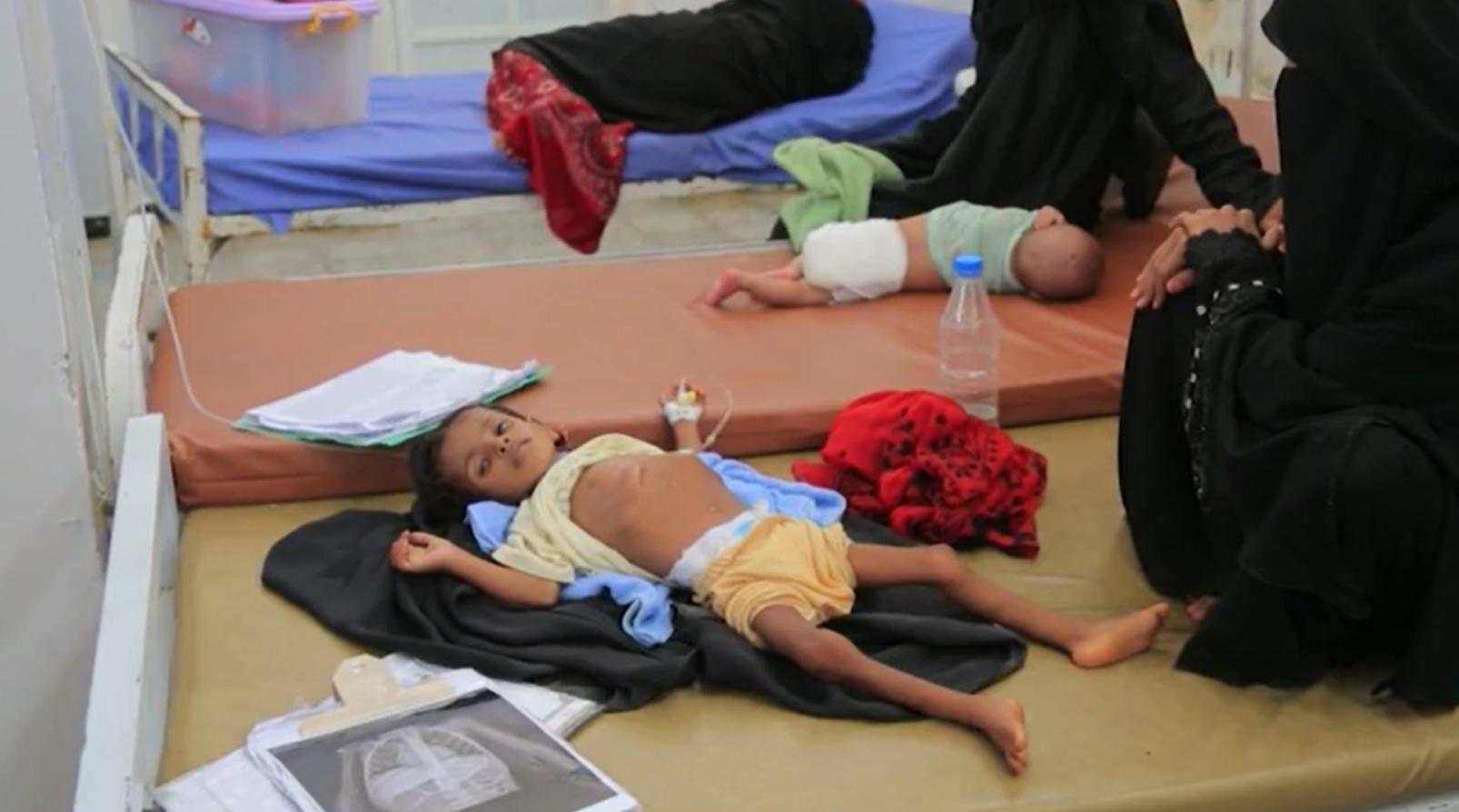 Criança em tratamento contra desnutrição no Iêmen