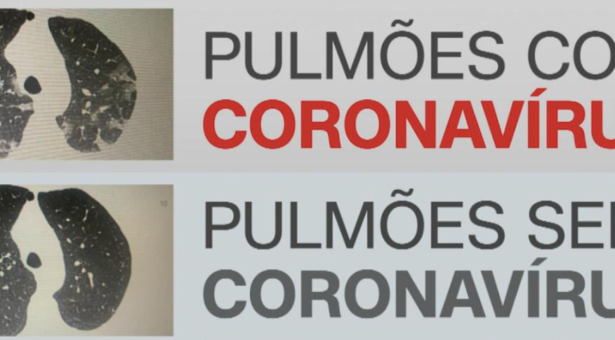 Tomografia de pulmões revela evolução do coronavírus