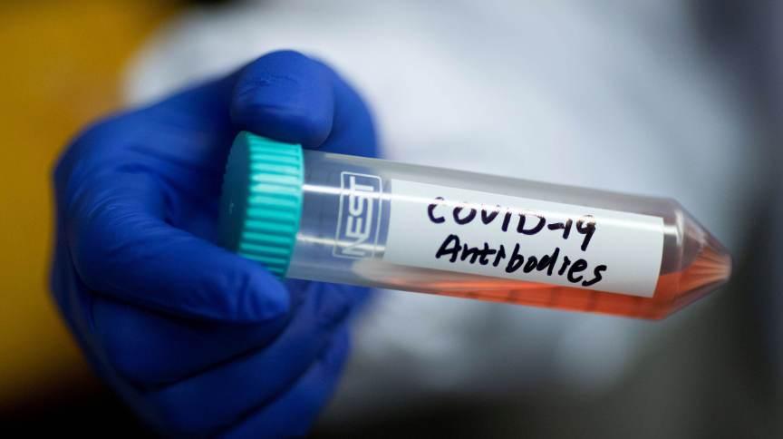 Tubo contendo anticorpos que podem ser usados em tratamento contra novo coronavírus em universidade em Pequim, China