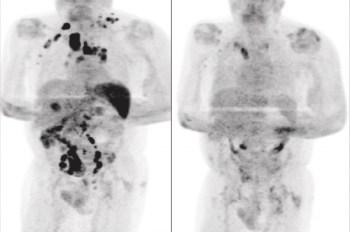Exame de tomografia revelou a remissão generalizada do linfoma