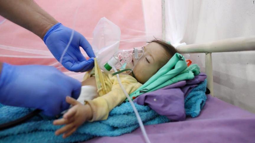 Hassan Ali, de dez meses, que morreu em um hospital em Abs, Iêmen, onde estava sendo tratado por desnutrição