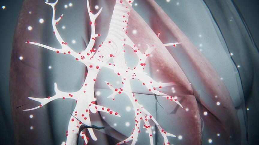 Simulação de como o coronavírus ataca o pulmão