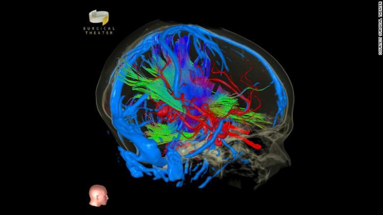 Dispositivo revela imagens detalhadas em realidade aumentada do corpo humano; tecnologia auxilia médicos em cirurgias complexas