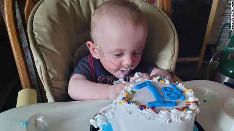 Richard Scott William Hutchinson foi nomeado pelo Guinness World Records como o bebê mais prematuro a sobreviver