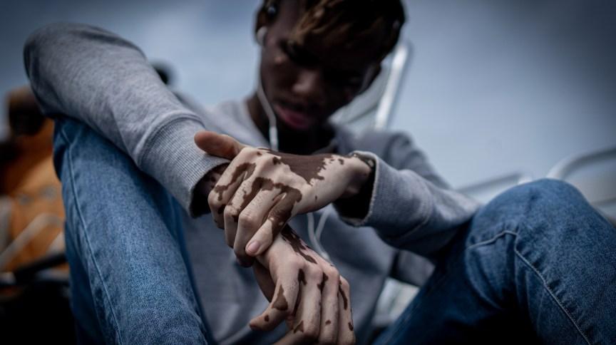 Especialistas alertam para os impactos do vitiligo na autoestima dos pacientes
