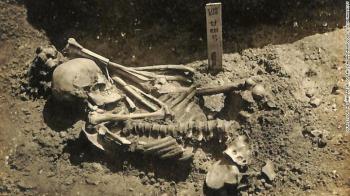 Especialistas de Oxford fizeram a descoberta enquanto estudavam os restos mortais de um homem adulto escavado perto do Mar Interior de Seto, no Japão