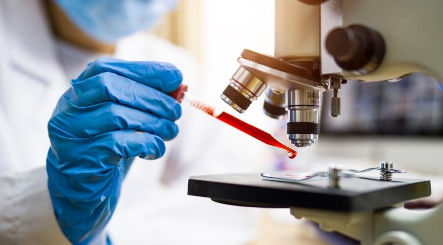 Teste de sangue poderá detectar cerca de 50 tipos de câncer