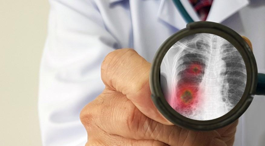 O medicamento evita a formação de coágulos que podem ficar concentrados nos pulmões e, assim, dificultar a respiração.