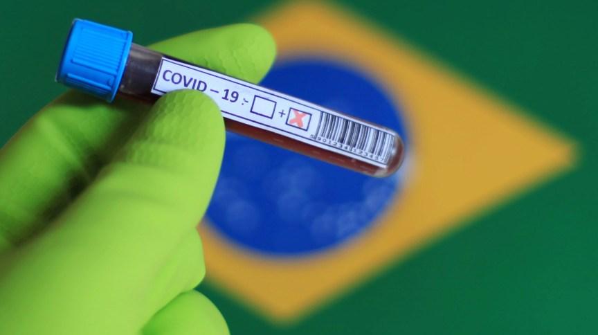 Teste para detecção de Covid-19 em São Paulo