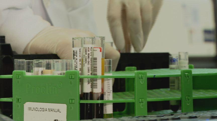 Pesquisa realizou exames sorológicos em 1.183 pessoas em 115 regiões da capital paulista