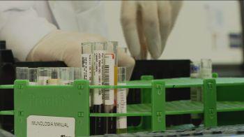 Presidente da Associação Brasileira de Medicina Diagnóstica afirma que os laboratórios têm capacidade para atender ao público nos exames para coronavírus