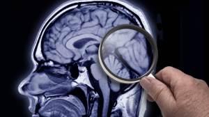 Alzheimer: saiba mais sobre a doença, seus sintomas, como preveni-la e tratá-la