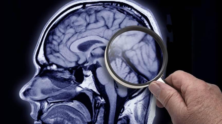 Medidas preventivas podem retardar o desenvolvimento do Alzheimer