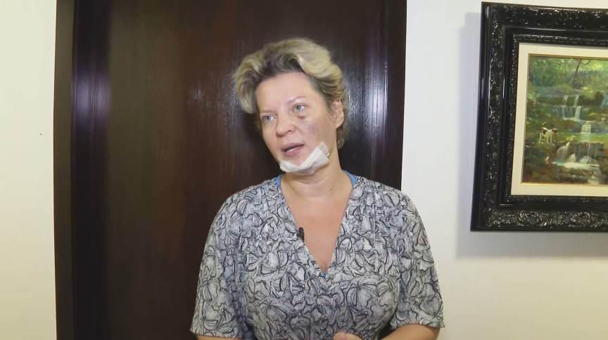 A deputada federal Joice Hasselmann (PSL-SP) mostra local das supostas agressões (24.Jul.2021)