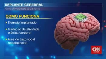 No quadro Correspondente Médico, neurocirurgião Fernando Gomes explicou como um americano voltou a falar depois de 15 anos por causa de um chip no cérebro
