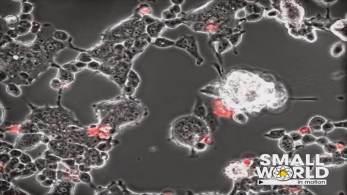 No quadro Correspondente Médico, neurocirurgião Fernando Gomes falou sobre estudo francês que investiga ação do vírus da Covid-19 no cérebro