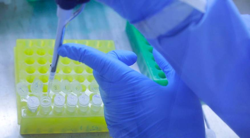 Pesquisadores do Instituto Oswaldo Cruz (IOC/Fiocruz) realizam o diagnóstico do novo coronavírus