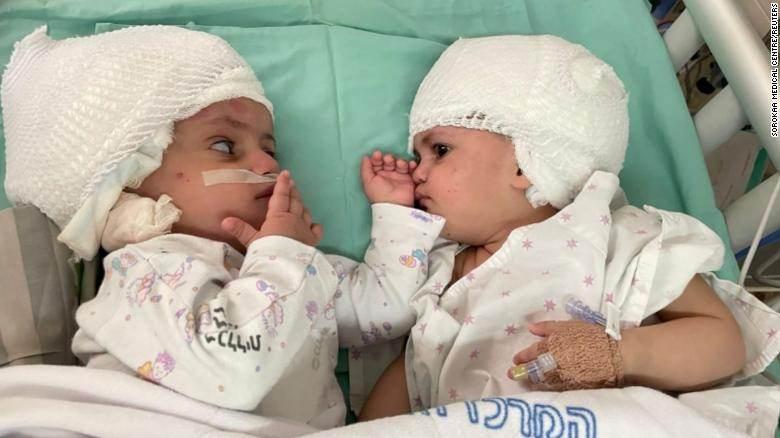 Gêmeas siamesas, unidas pela cabeça, se olham pela primeira vez após cirurgia de 12 horas