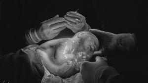 Empelicado: Em fenômeno raro, bebê nasce dentro da bolsa amniótica da mãe; veja