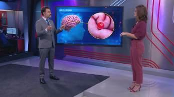 Neurocirurgião Fernando Gomes falou sobre caso de ex-BBB Josy Oliveira, que morreu, aos 43 anos, durante cirurgia para tratar aneurisma
