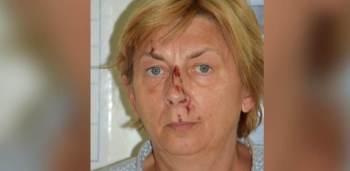 """""""Ela fala inglês, mas não se lembra de sua identidade"""", disse a polícia local em comunicado"""