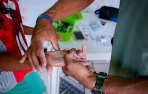 O diagnóstico tardio da doença, que atinge cerca de 27 mil pessoas por ano no Brasil, pode levar ao desenvolvimento de complicações, incluindo lesões neurológicas