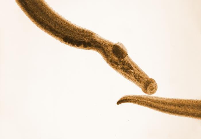 Espécime de Schistosoma mansoni, parasita que causa a esquistossomose