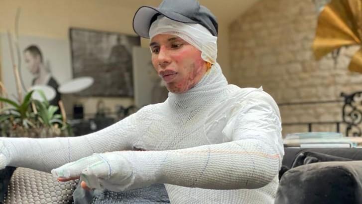 Diretor criativo da grife de luxo disse que escondeu as queimaduras com roupas e acessórios durante entrevistas e sessões de fotos