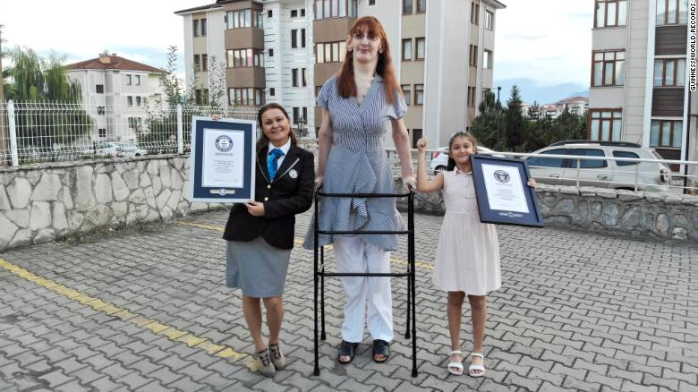 Rumeysa Gelgi, a mulher viva mais alta do mundo